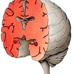 Hippocamp Medial Illus